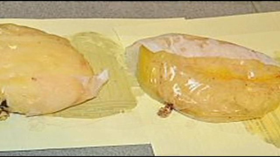 Police say these breast implants are filled with cocaine-Photo courtesy: Spanish Interior...