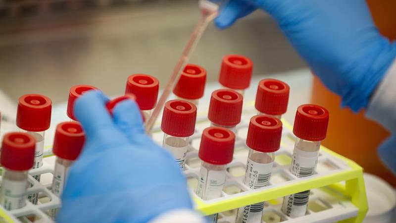 In this Wednesday, March 11, 2020 file photo, a technician prepares COVID-19 coronavirus...