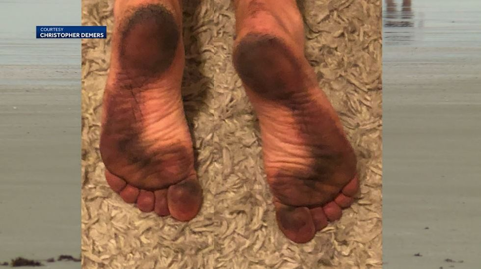 One of the beachgoers who ended up with the black substance on the bottom of their feet was...